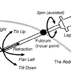 Movement of endoscope: Since the endoscope is limited due