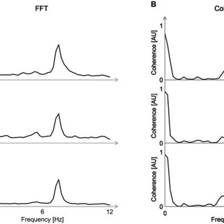 (A) Fourier Transform (FFT) of the Electromyogram (EMG