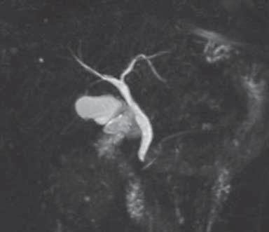 Respiratory-triggered high-resolution 3D-MRCP MIP image ...