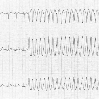 (PDF) Treating patients with ventricular ectopic beats