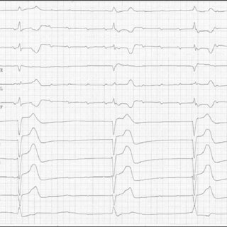 (PDF) Tachycardia after pacemaker implantation in a