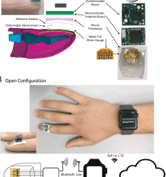 schematic diagram of the wearable system a electronics with silicone prosthetic on the [ 850 x 1066 Pixel ]