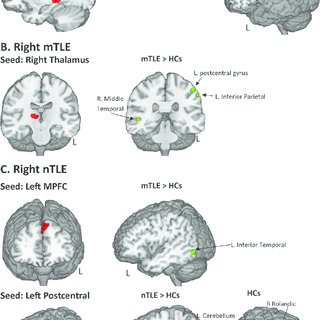 (PDF) Gray Matter Abnormalities in Temporal Lobe Epilepsy