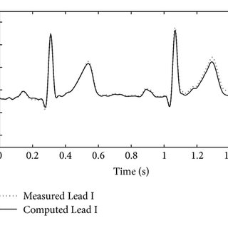 (PDF) True Unipolar ECG Machine for Wilson Central