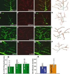 threedimensional projections of individual arbors on adult dlms labeled with marker antibodies against the neuronal cytoskeleton and pre and post synaptic  [ 850 x 979 Pixel ]
