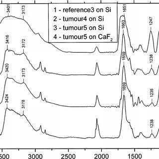(PDF) FTIR spectroscopy studies of nucleic acid damage