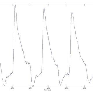 Thin cap fi broatheroma. ILD 5 in-line display; VH-IVUS 5