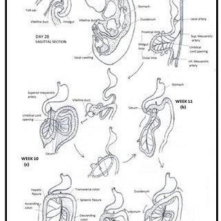 """(PDF) """"DOLICHOCOLON"""" EMBRYOLOGICAL BASIS AND ITS CLINICAL"""