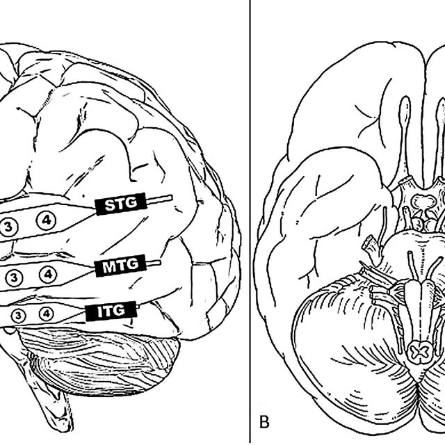 (a) MRI images from P1, P2, and P3. Microelectrodes are