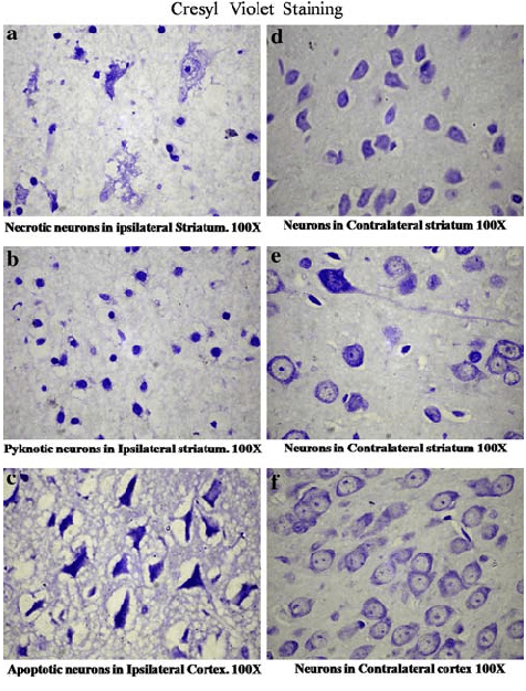 Cresyl violet stained rat brain sections. Cresyl violet stains the... | Download Scientific Diagram
