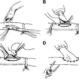 Reimplantation (transposition) of the vertebral artery