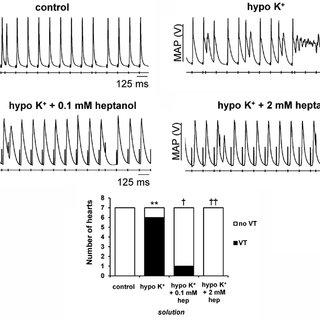 (PDF) Ventricular anti-arrhythmic effects of heptanol in