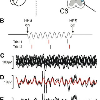 (PDF) Blocking central pathways in the primate motor