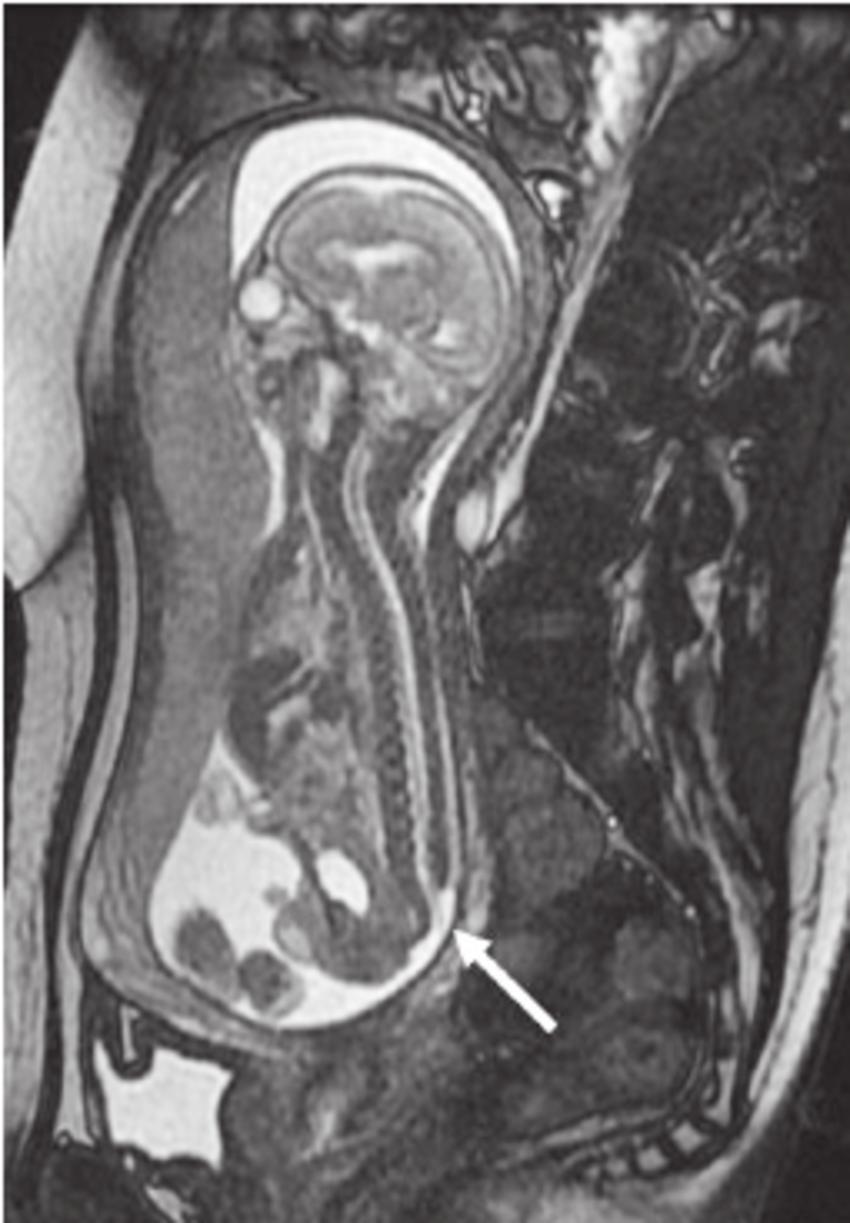 hight resolution of case 30 sagittal fetal mri image shows a myelomeningocoele arrow in a 30