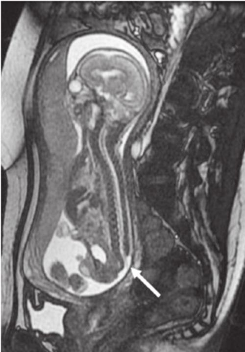 small resolution of case 30 sagittal fetal mri image shows a myelomeningocoele arrow in a 30