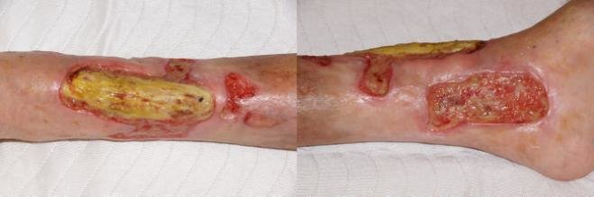 Clinical presentation of mixed arteriovenous leg ulcers of ...