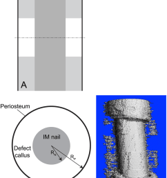 prediction of bone tissue regeneration in a virtual model of a critical sized femoral defect tested [ 850 x 1076 Pixel ]