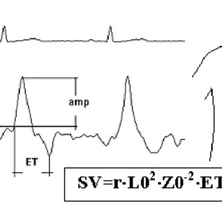 (PDF) Dynamic Impedance Cardiography — the system and its