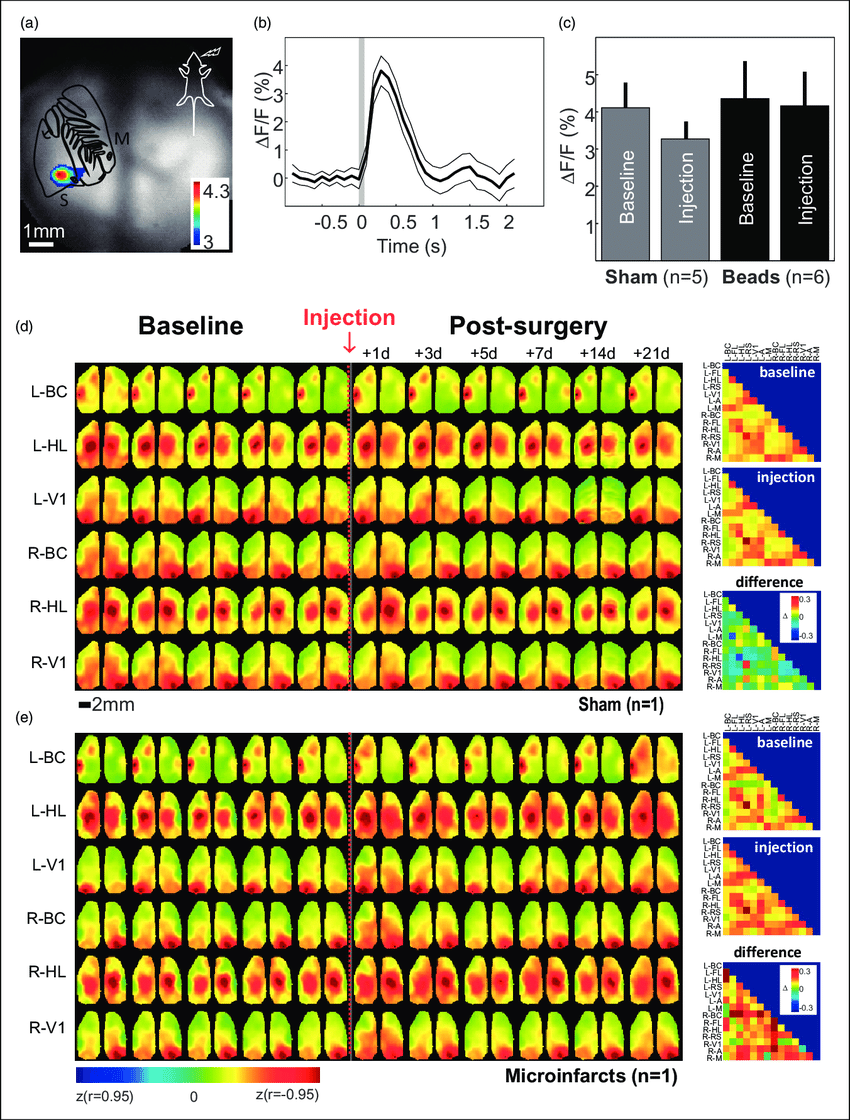 hight resolution of wide field calcium imaging a map of maximum response evoked by whisker