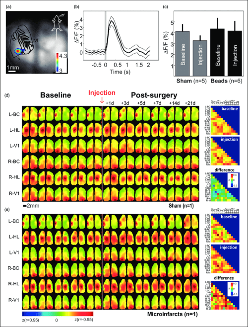 small resolution of wide field calcium imaging a map of maximum response evoked by whisker