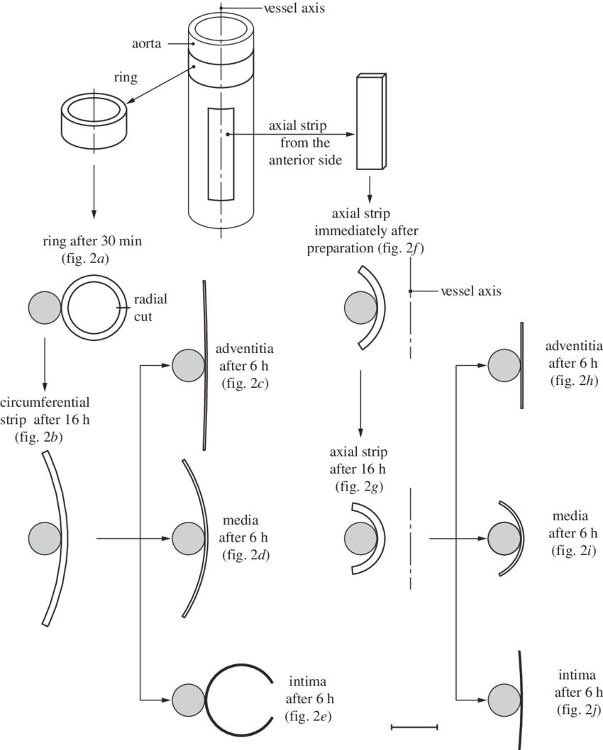 hight resolution of schematic of the procedure for specimen preparation showing ring and axial strip specimens from the aorta after 30 min of equilibration and immediately