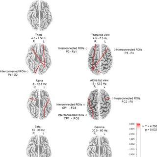 (PDF) Modification of EEG functional connectivity and EEG