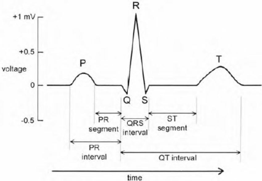 A typical cycle (reflecting a heart beat) in the ECG
