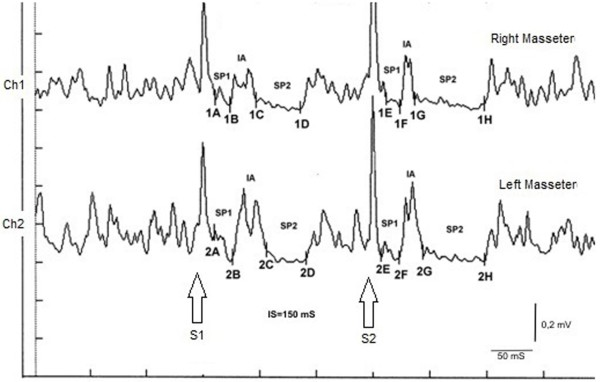 Recording of the recovery cycle of the Masseter Inhibitory