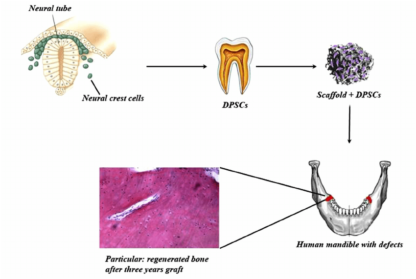 human mandible diagram wiring for a dimmer switch representation of defect repair using dpscs seeded on scaffold