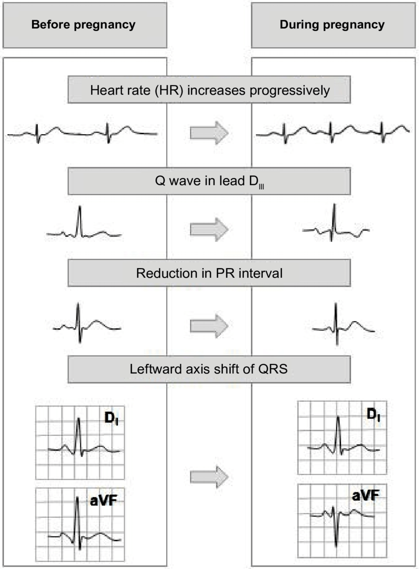 hight resolution of ecg changes in normal pregnancy 48 heart rate increases progressively throughout the pregnancy