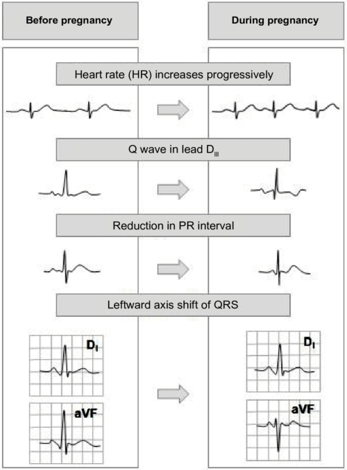 small resolution of ecg changes in normal pregnancy 48 heart rate increases progressively throughout the pregnancy