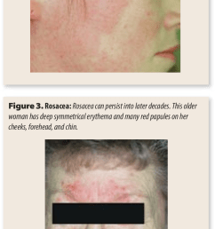 rosacea a young woman has persistent erythema and red papules on both cheeks no [ 741 x 1520 Pixel ]