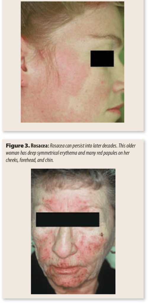 small resolution of rosacea a young woman has persistent erythema and red papules on both cheeks no