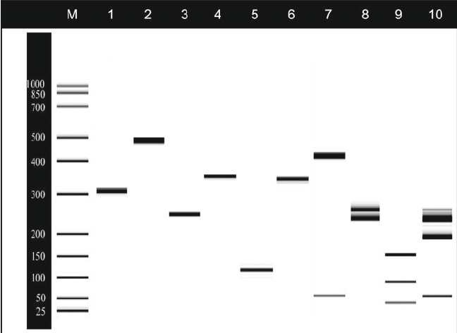 An example of DNA fi ngerprinting by the use of PCR–RFLP