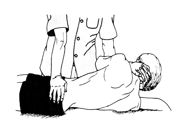 Spinal manipulation technique utilized in this study(5;47