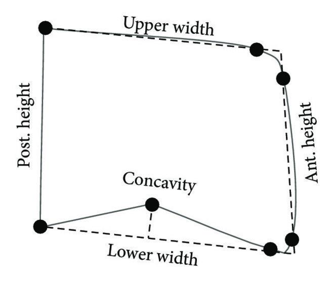 cervical vertebrae diagram sony xplod cd player wiring of the cephalometric measurements only a vertebral body is shown