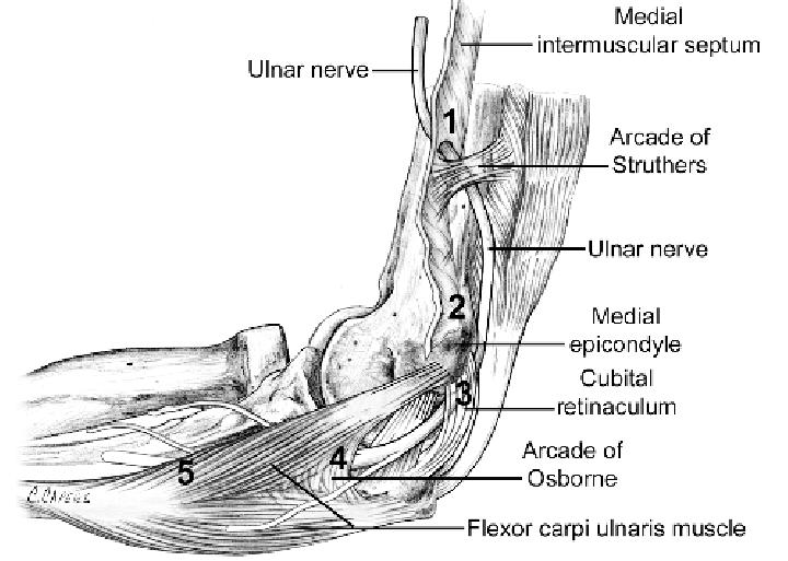 ulnar nerve diagram tpi wiring 1 potential sites of compression intermuscular septum