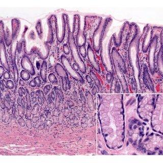 Normal gastric mucosa histology. ((a); H&E 10x; square 40x) Fundic... | Download Scientific Diagram
