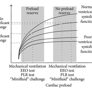 (PDF) Fluid Therapy: Double-Edged Sword during Critical Care?