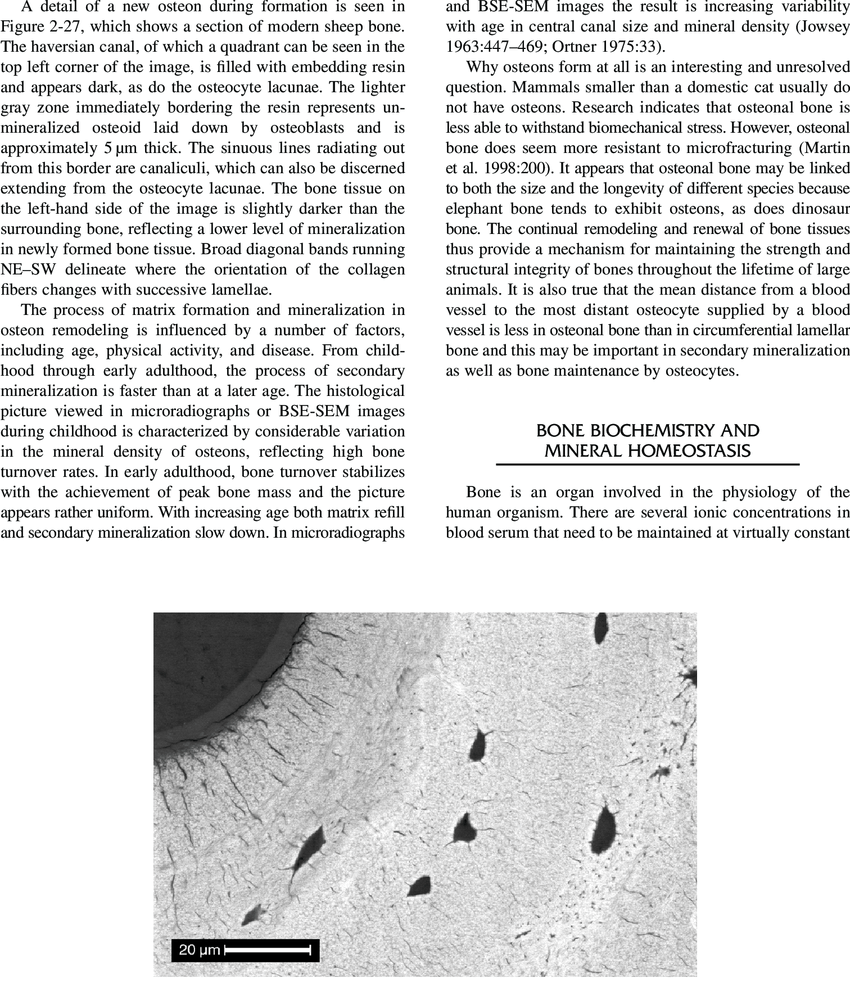 hight resolution of detail of actively forming osteon in modern sheep bone seen in bse sem
