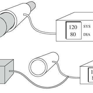 (PDF) Evaluation of non-invasive blood pressure simulators