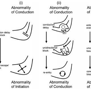 (PDF) Update on gastric dysrhythmia: pathophysiology