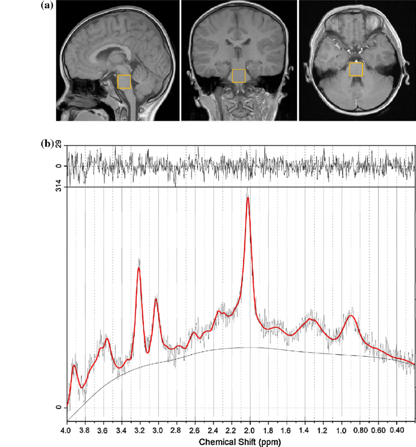 brain diagram pons iron and carbide slice great installation of wiring location the voi in representative 1h mrs spectra rh researchgate net midbrain
