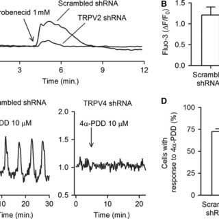 Gene and protein expression of TRPV channels in human
