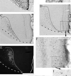 photomicrographs of retrosplenial region rgb showing the presence of download scientific diagram [ 850 x 1354 Pixel ]