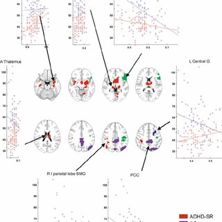 (PDF) The Relationship Between Grey-Matter and...