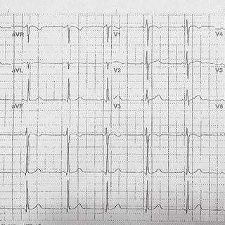 Polymorphic ventricular tachycardia (V-tach) without pulse