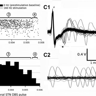 (PDF) Activation of subthalamic neurons by contralateral
