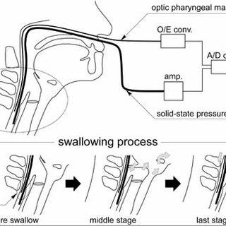Diagram of the catheter-type solid-state pressure sensor