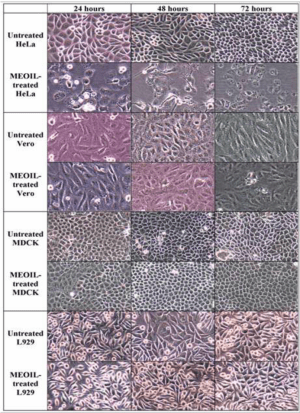 Morphology of HeLa, Vero, MDCK and L929 cells by phase